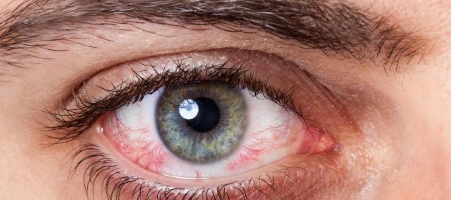 Tempo frio pode ocasionar mais irritações nos olhos