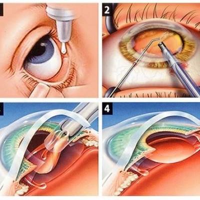 Cirurgia para Catarata com facoemulsificador Alcon Infiniti e lentes Premium