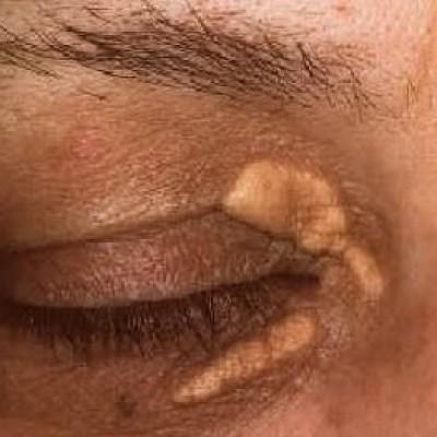 Cirurgia para lesões de pele palpebral como verrugas, tumores, nódulos, xantelasmas